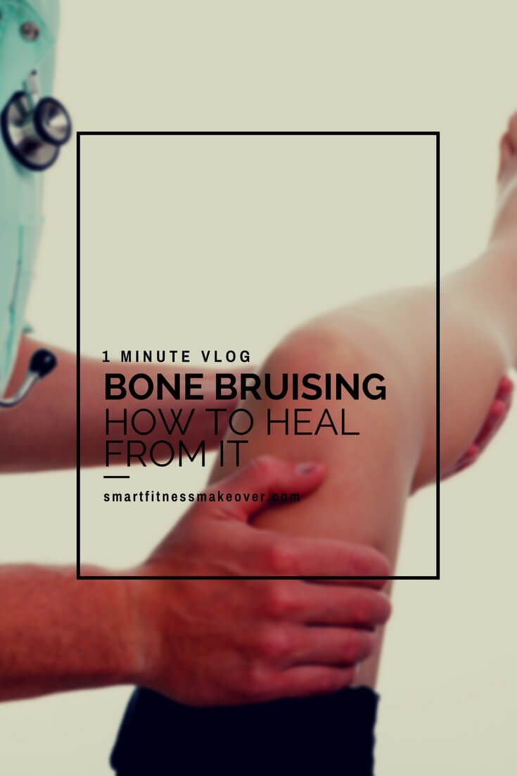 how to treat a bruised bone in knee