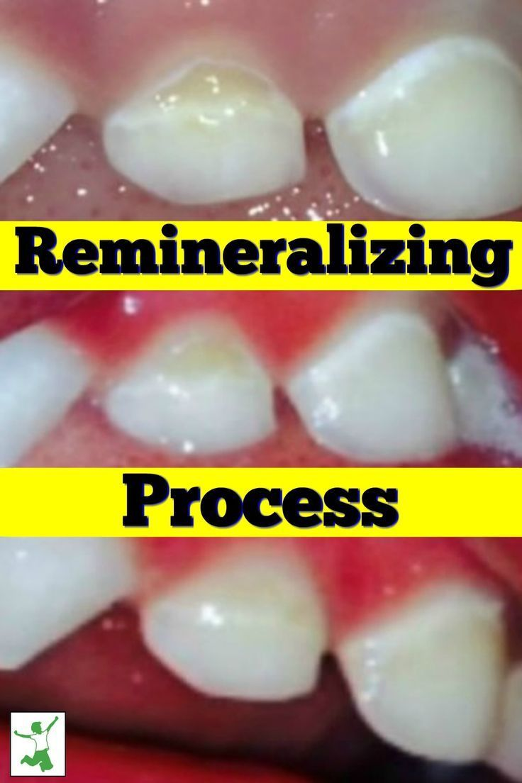 Photographic Proof Of Remineralized Cavities Healthy Home Economist Tooth Decay Remedies Herbal Cure Heal Cavities