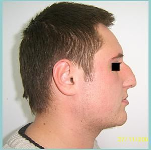 Plastic surgery, in plastic surgery clinics in Romania.#Rhinoplasty Before. Top Cosmetic Surgery Surgeons in Romania.  http://www.intermedline.com/services/medical-tourism-romania-treatment/aesthetic-surgery-clinics-romania#.UrdhFvQW3sk #cosmeticsurgerypics, #cosmeticsurgeryRomania, #aestheticsurgeryjob, #plasticsurgeryabroad, #affordablecosmeticsurgery  #medicaltourismabroad  #nosejobcosmeticsurgery #medicaltourismRomania  CONTACT NOW! office@intermedline.com ;  Phone: 1 518 620 42 25