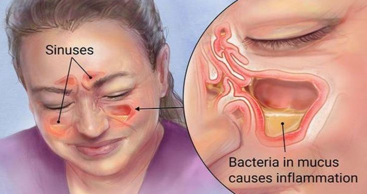 In 20 Seconds, Kill Sinus Infection With Simple Item And Method