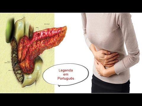 Pâncreas inflamado: sintomas que você tem que conhecer! (Legenda em Port...
