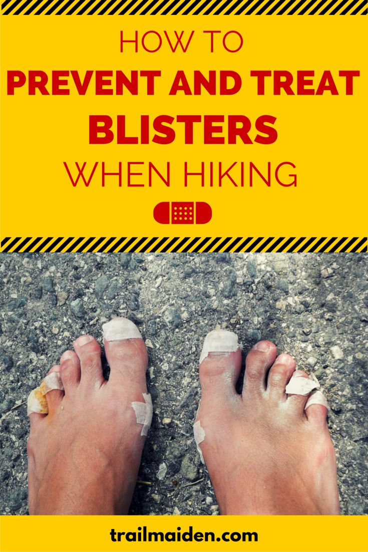 Complete guide to preventing and treating blisters with easy to follow instructions and a FREE blister first-aid guide!