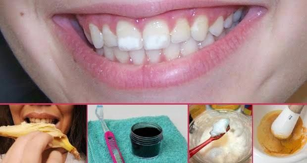 e0b737055da028b565457a2e3ad47460 - How To Get Rid Of White Stain On Teeth