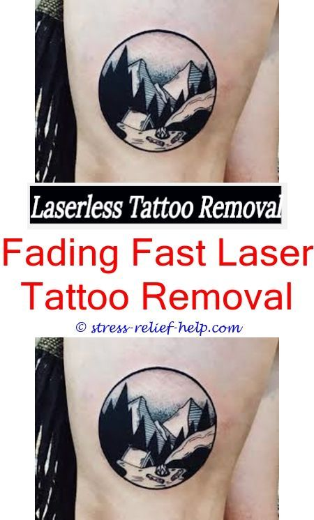 Tattoo Removal Treatment How To Remove Eyebrow Tattoo Naturally