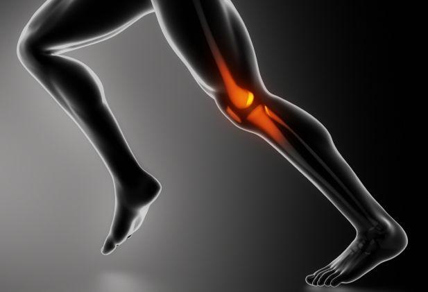 <p>¿Qué es la rodilla de corredor? Rodilla de corredor es el término que utilizan los médicos para referirse a una serie de afecciones de la rodilla, como por ejemplo, el síndrome de dolor femororrotuliano y la condromalacia rotuliana. Es la lesión más común entre los corredores como consecuencia de la …</p>