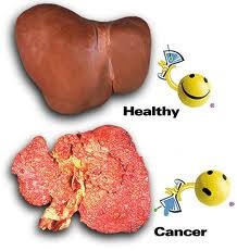 iver Cancer prognosis prognosis gives an idea of the chance that a patient will recover or have a recurrence. Some of the factors that not only affect a person's prognosis for liver cancer but for other cancers as well are the type and location of the cancer and the stage of the disease that is