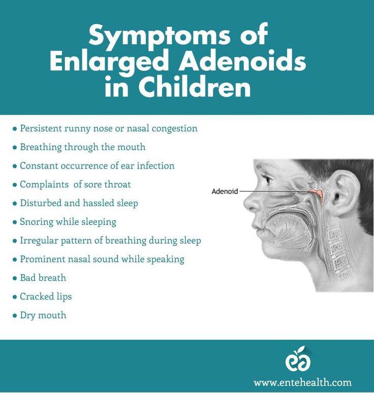 Ear Infection Pediatric