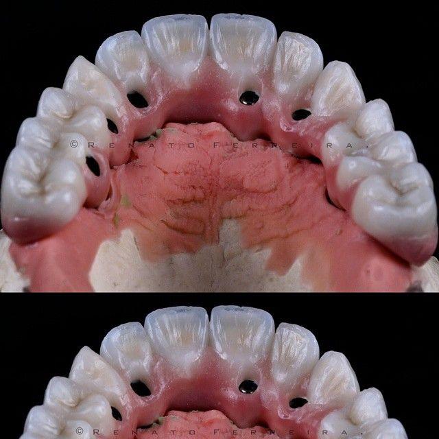 Faça o que for preciso! . .Com a Maestria de @pablio_caetano . #orthosodontologia #protocoloceramico #straumann #implantology #implant #implantodontia #dentist ##dentalphotographgroup #dpg #odontologo #prosthodontics