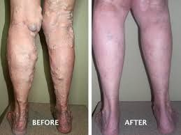 Advanced Vein Care of Montana physician explain the causes, symptoms, diagnosis, treatments and prevention of varicose veins removal options including sclerotherapy, endovenous laser treatment and varicose vein surgery. http://cavc.com/varicose_vein.php