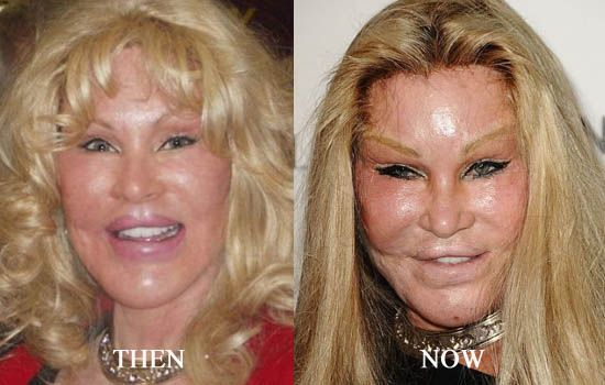 60 Worst Cases Of Celebrity Plastic Surgery Gone Wrong