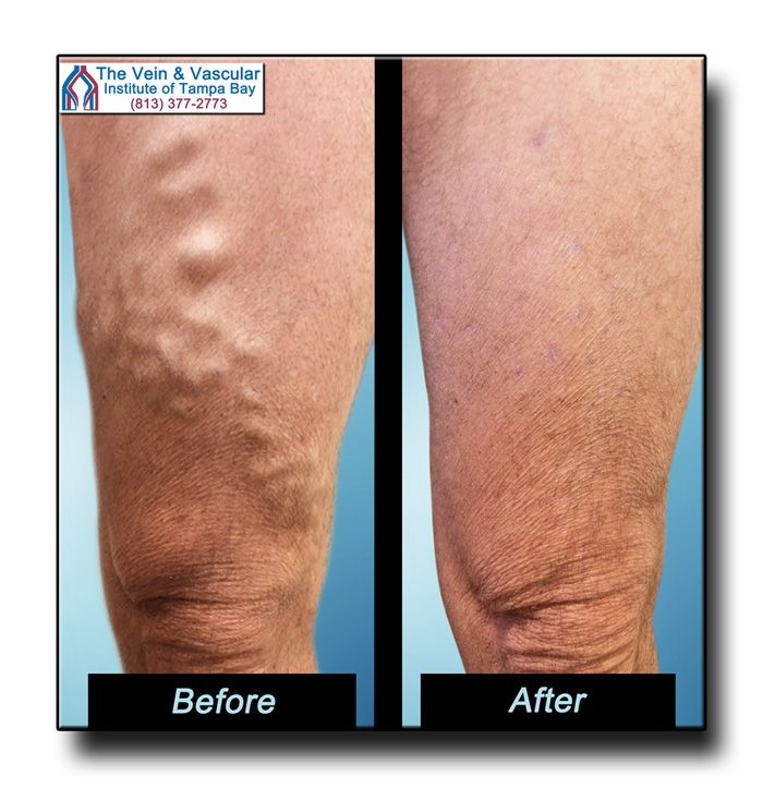 Vein Treatment Tampa Pictures.  Varicose veins only get worse with time if not treated and can lead to serious circulatory problems.  State-of-the-art vein surgery techniques at our Tampa vascular clinic performed by our vein specialists will safely and quickly eliminate your varicose veins.  Give us a call at (813) 377-2773 to schedule a Vein Consultation.  https://www.tampavascularsurgeon.com/tampa-varicose-vein-removal-pictures/