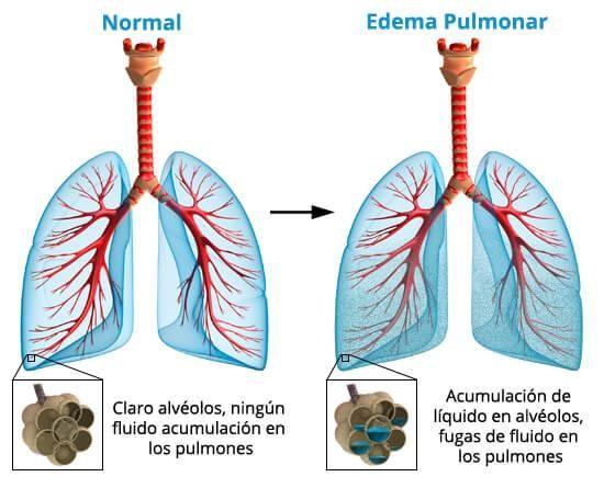 ¿Qué es exactamente un edema pulmonar? Lo que no sabes...