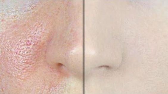 Les masques pour la peau se fanant de la personne de 40 années
