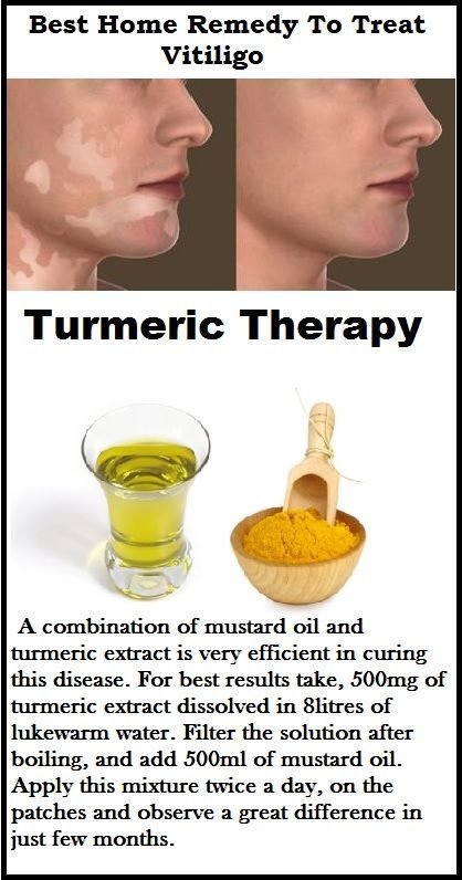 Vitiligo Treatment Turmeric Therapy Cure Vitiligo