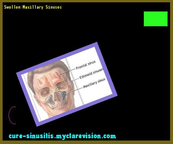 Swollen Maxillary Sinuses 074009 - Cure Sinusitis