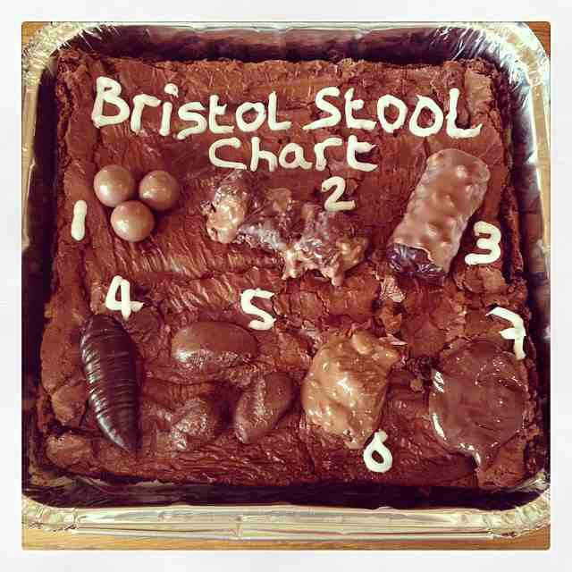 Hilarious! Brownie to demonstrate the Bristol stool scale! Love how they always tie food into medicine!