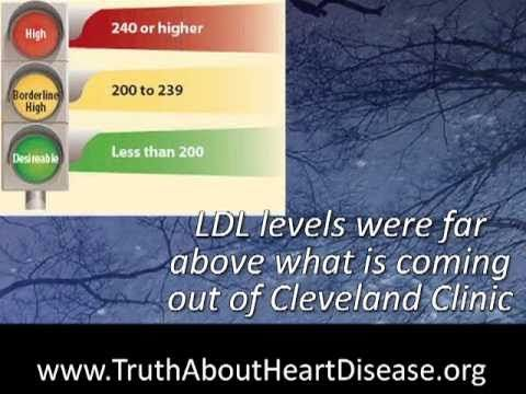 World Renown Heart Surgeon Speaks Out On What Really Causes Heart Disease. And it is not cholesterol.