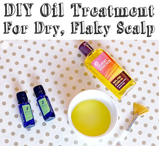 A natural remedy for itchy, flaky scalps...without the drying effects of traditional dandruff shampoo!