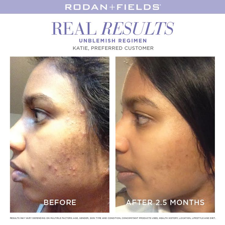 "#WhatIfWednesday- What if you didn't have to worry about your breakouts anymore?  ""I felt so bad about myself; every time I looked in the mirror, I wanted to start crying. I decided that it was finally time to try UNBLEMISH. Now, more than two months later I am officially 100 percent a believer in this product and this company! Thank you Rodan and Fields!"" –R + F PC, Katie Bigley.  http://shala.myrandf.com/ca/UNBLEMISH/UNBLEMISH-Products/UNBLEMISH-REGIMEN/p/UNRJ001-01_1024Pulse Share"