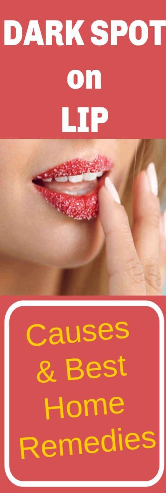 Dark spot on lip – Best Home Remedies To Erase Black Spots On Lips