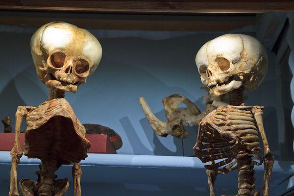 """Morbid Anatomy: Museo di Anatomia Patologica dell'Universitá degli Studi di Firenze : Italy Trip Guest Post by Evan Michelson, TV's """"Oddities"""" and Morbid Anatomy Library"""