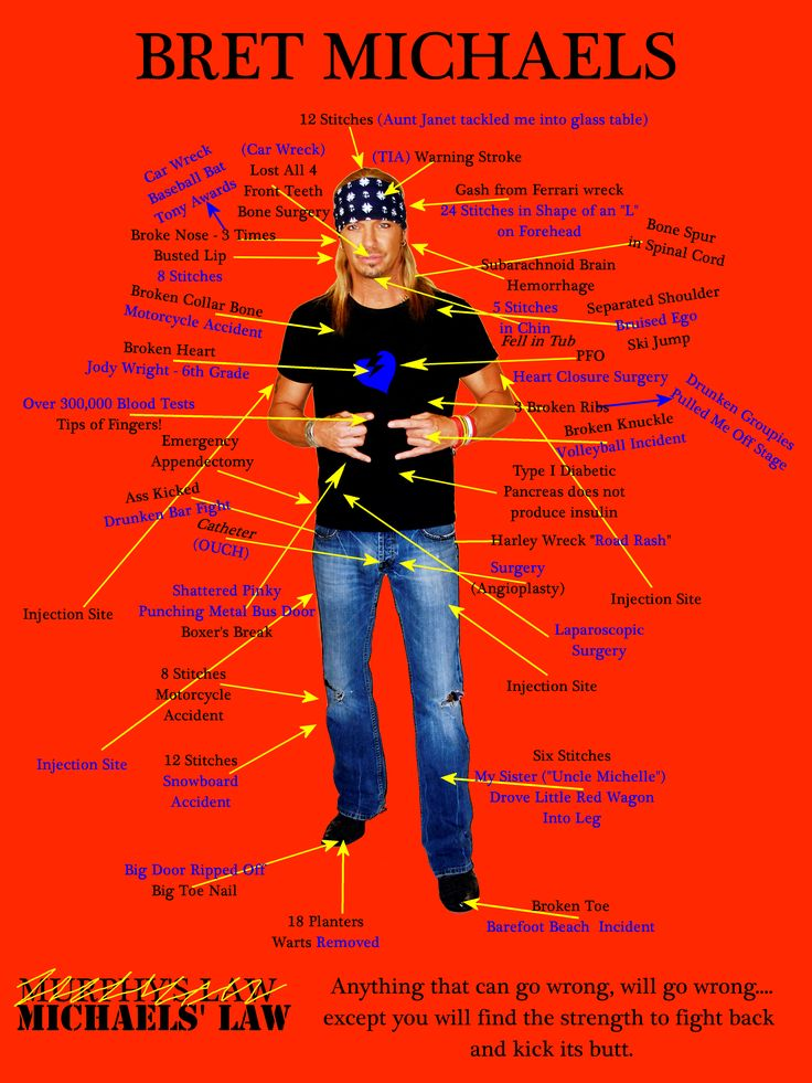 A list of all the ailments Bret Michaels has had, yet he is still rocking!  Check out how he is inspiring others to live healthier on GoodChime. #health #fitness #celeb  http://www.goodchime.com/se/page/bretmichaels