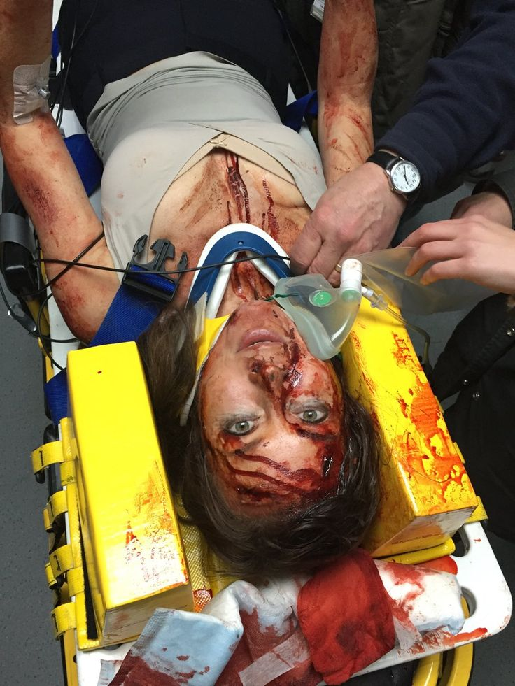 Amanda BTS Casualty30 https://twitter.com/holbytv