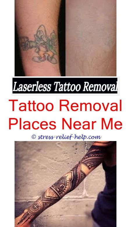 Can laser tattoo removal really work.Will black salve remove tattoos ...