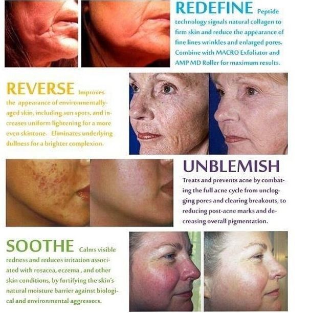 Not sure which Rodan + Fields Regimen is for you email me and I can help. Anichia38@gmail.com