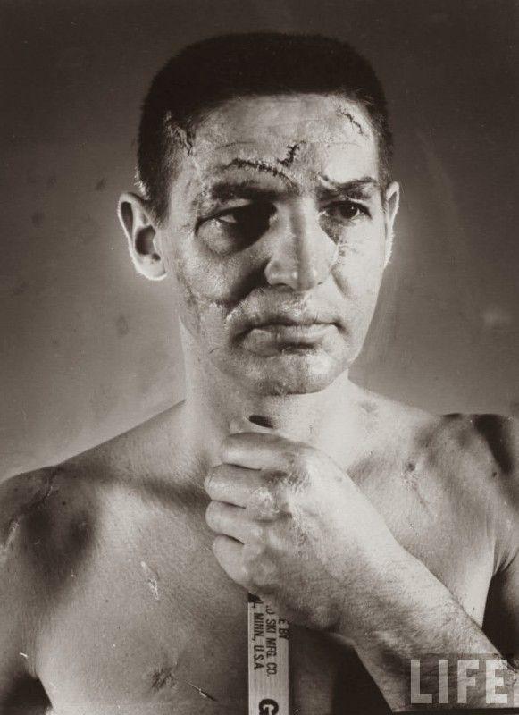 Le visage de Terry Sawchuk, un gardien de Hockey sur glace, maquillé pour montrer toutes les blessures qu'il a reçu avant que les casques et les masques de protection ne deviennent un équipement standard.