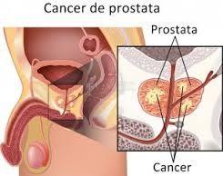 Cancerul de prostata - apare frecvent la barbatii de peste 45 ani si ocupa un loc important in patologia urologica. Are o evolutie clinica lenta  http://www.medpont.ro/oncologie/cancerul-de-prostata/