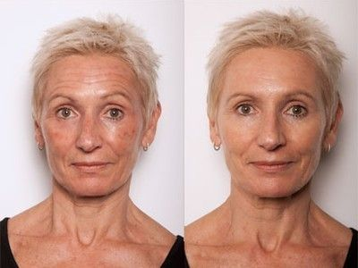 Facial Yoga Exercises Will Transform A Flabby Face And Erase Face Lines