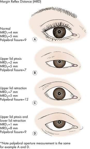 Mrd 1 And Mrd 2 Measurement Eye Diseases Optometry