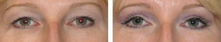 Carpinteria Eyelid Surgery and non-surgical procedures to rejuvenate your eyes. Juvederm and Restylane options for Blepharoplasty. #juvederm #blepharoplasty #eyelidsurgery #restylane #eyelift