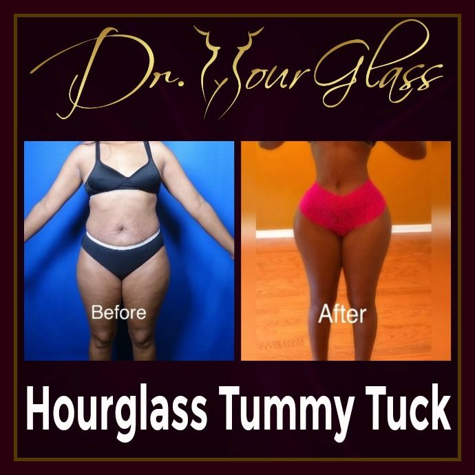 She's  very confident to show off her body after the Hourglass Tummy Tuck procedure by none other than Dr. Cortes. You will notice that it did remove excess body fats so her waist becomes smaller and her hips become wider because of fat transfer to the hips too.