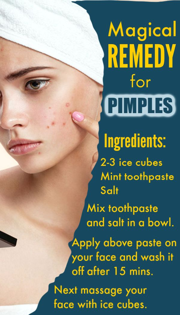 All you need this only magical ingredient, it will remove pimples and blackheads instantly