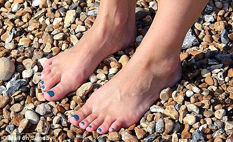 20 Best Images About Conditions Bunions On Pinterest Comfortable Shoes Popsugar And What Is
