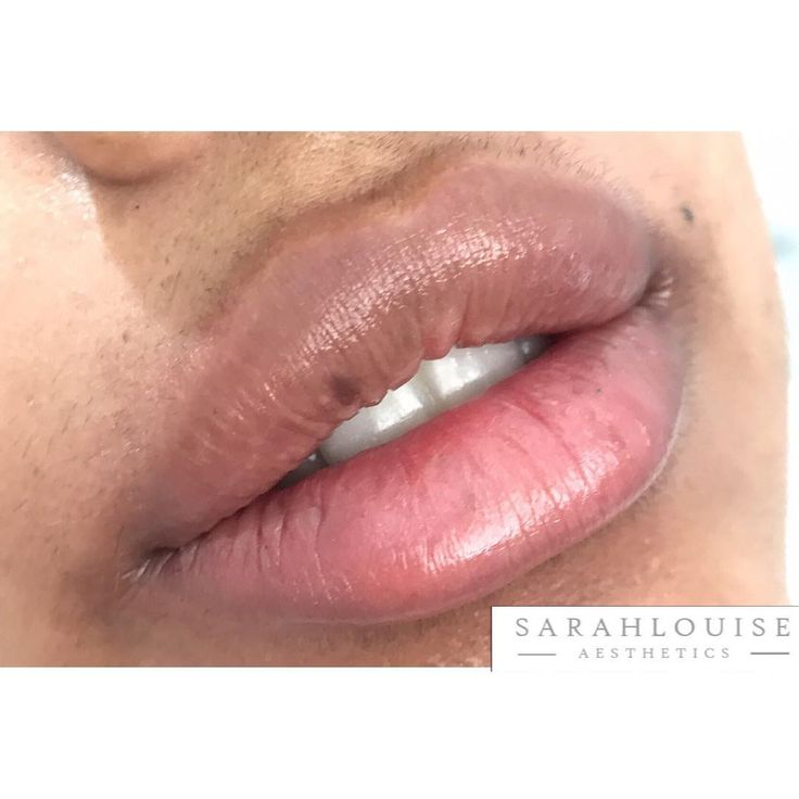 Sometimes size does matter �������� .........………………………… ��Procedure: Lip Augmentation ❓Purpose: To enhance lip volume, shape & definition ⏱ Duration: 30-45 mins �� Pain: Minimal (topical numbing cream is used) �� Recovery: Swelling,bruising & redness -  usually up to 12- 24hrs �� Cost: from £130 �� Website: SarahLouiseAesthetics.com �� 07478330808 �� ✉️ ��info@sarahlouiseaesthetics.com �� Online Booking: SarahLouiseAesthetics.phorest.me/book #aesthetic #cosmetic #lipinjections #lipfiller…