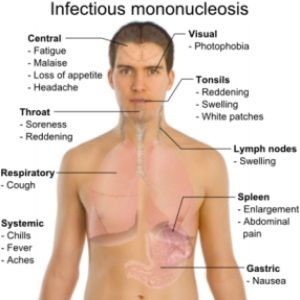 Top Natural Cures For Mononucleosis