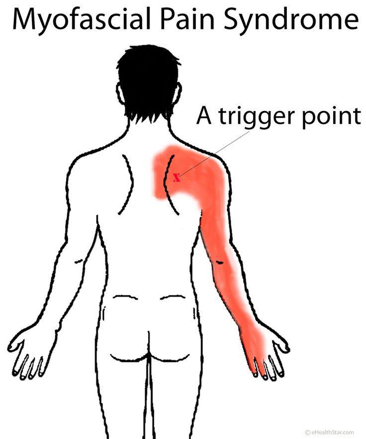 185 Best Images About Back Shoulder Neck Injury On