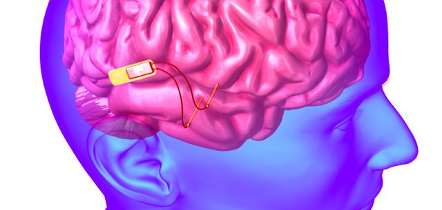 Human Memory Enhanced With a Brain Implant For the First Time