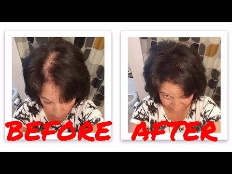 Exclusive Top Four Reasons for Hair Loss -  How To Stop Hair Loss And Regrow It The Natural Way! CLICK HERE! #hair #hairloss #hairlosswomen #hairtreatment Here are top four reasons of hair fall. You must know the reasons to prevent hair fall .watch and follow. please don't forget to subscribe.. . .. .. . . . .. hair fall control... - #HairLoss