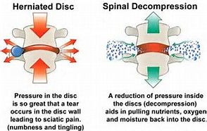 Spinal Decompression will release the pressure in a herniated disc and will reduce pain!