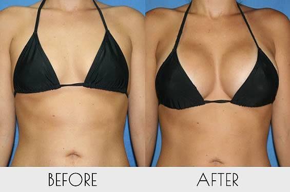 Galeria de fotos de silicone nos seios antes e depois. - Blogs de Moda