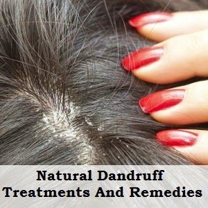 Natural Remedies To Get Rid Of Dandruff