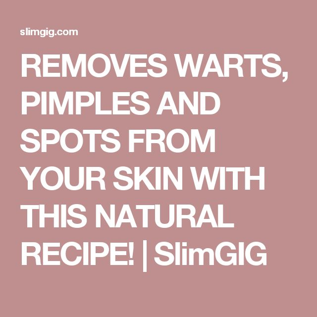 REMOVES WARTS, PIMPLES AND SPOTS FROM YOUR SKIN WITH THIS NATURAL RECIPE! | SlimGIG
