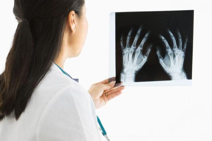Causas de dolor en articulaciones de muñecas y codos. El dolor de articulaciones es causado por varias condiciones. Algunas son menores y sanan por cuenta propia. Otras son crónicas y requieren cuidados médicos. El dolor en articulaciones de codo y muñeca puede ser causado por lesiones traumáticas ...