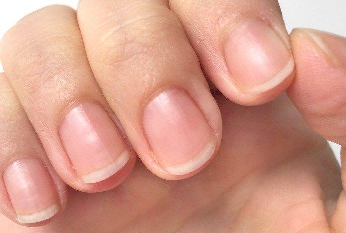 feste lange und gesunde Fingernägel durch Miracle Nails Super Nagelhärter