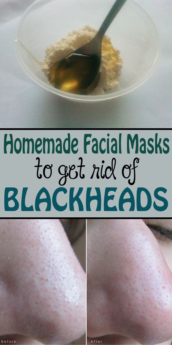 Here are some simple cosmetic treatments you can do at home that will help you get rid of blackheads forever.