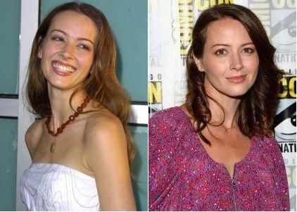 Amy Acker Plastic Surgery Before and After - https://www.celebsurgeries.com/amy-acker-plastic-surgery-before-after/
